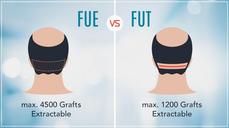 FUT Vs FUE Medikoy for hair transplant