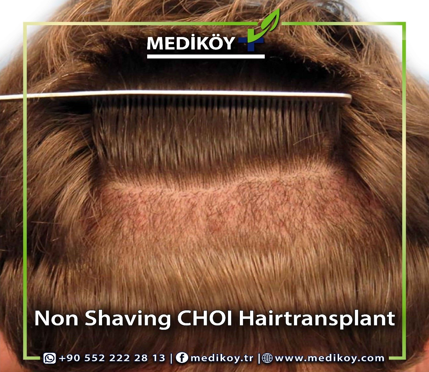 Women HAIR TRANSPLANT BE DONE WITHOUT SHAVING THE HEIR