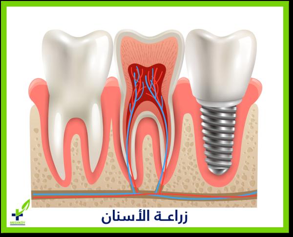الأشخاص الذن ننصح بزراعة أسنان لهم وتكون مناسبة لحالتهم