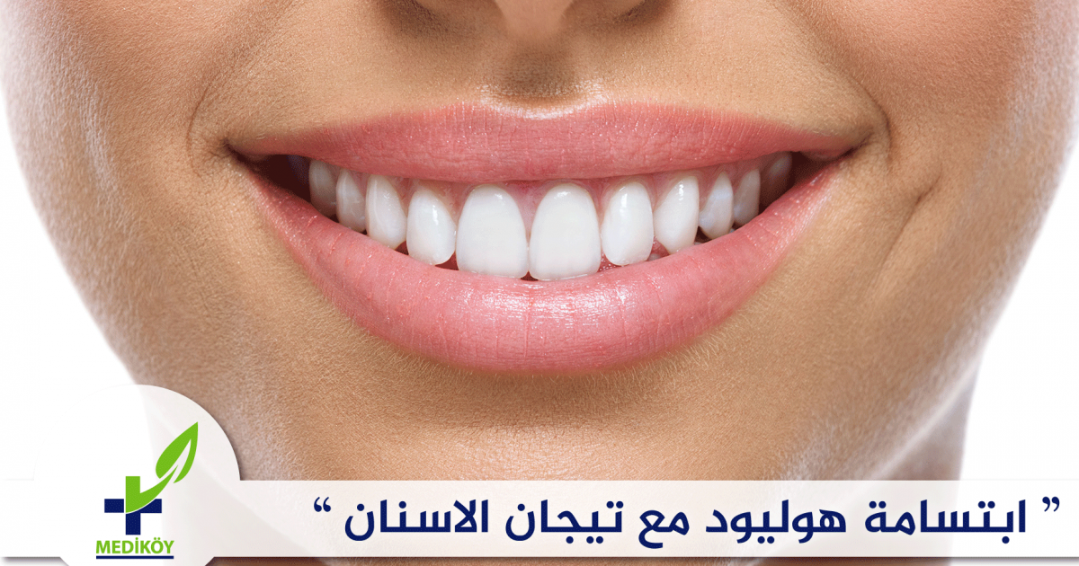 ابتسامة هوليود مع تيجان الاسنان